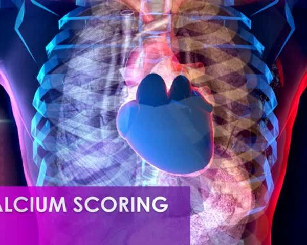 Healthy Life, Happy Life: Calcium Scoring