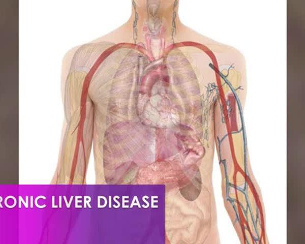Healthy Life, Happy Life: Liver Disease