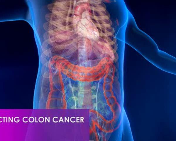 Healthy Life, Happy Life: Colon Cancer