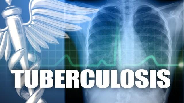 Possible tuberculosis exposure investigated at Canutillo High School